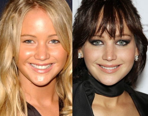 15 Celebrities You Didn T Realise Have Had Plastic Surgery